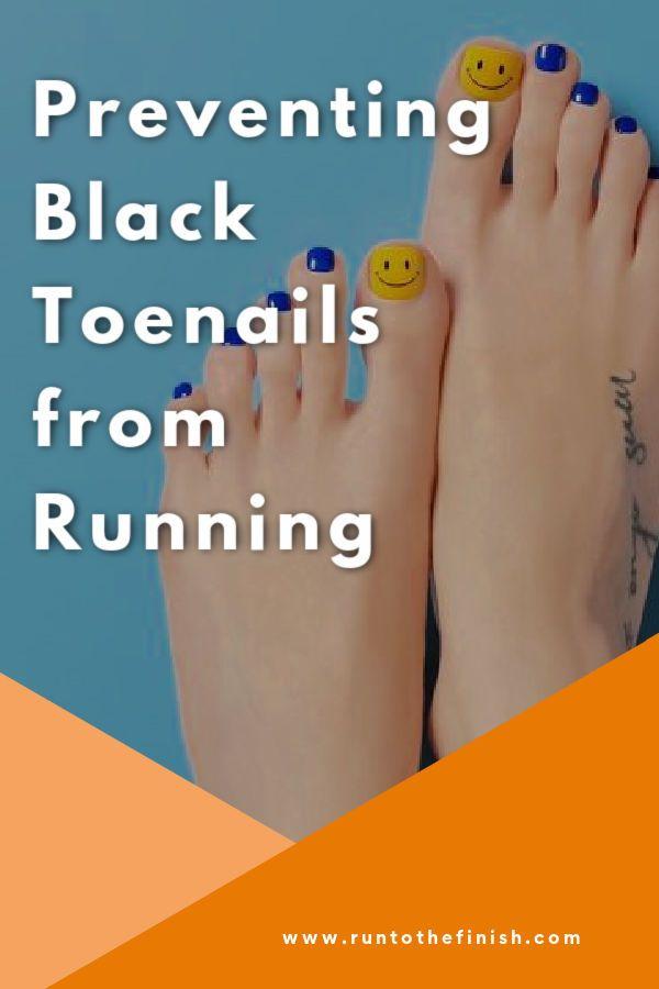 Black Toenails from Running